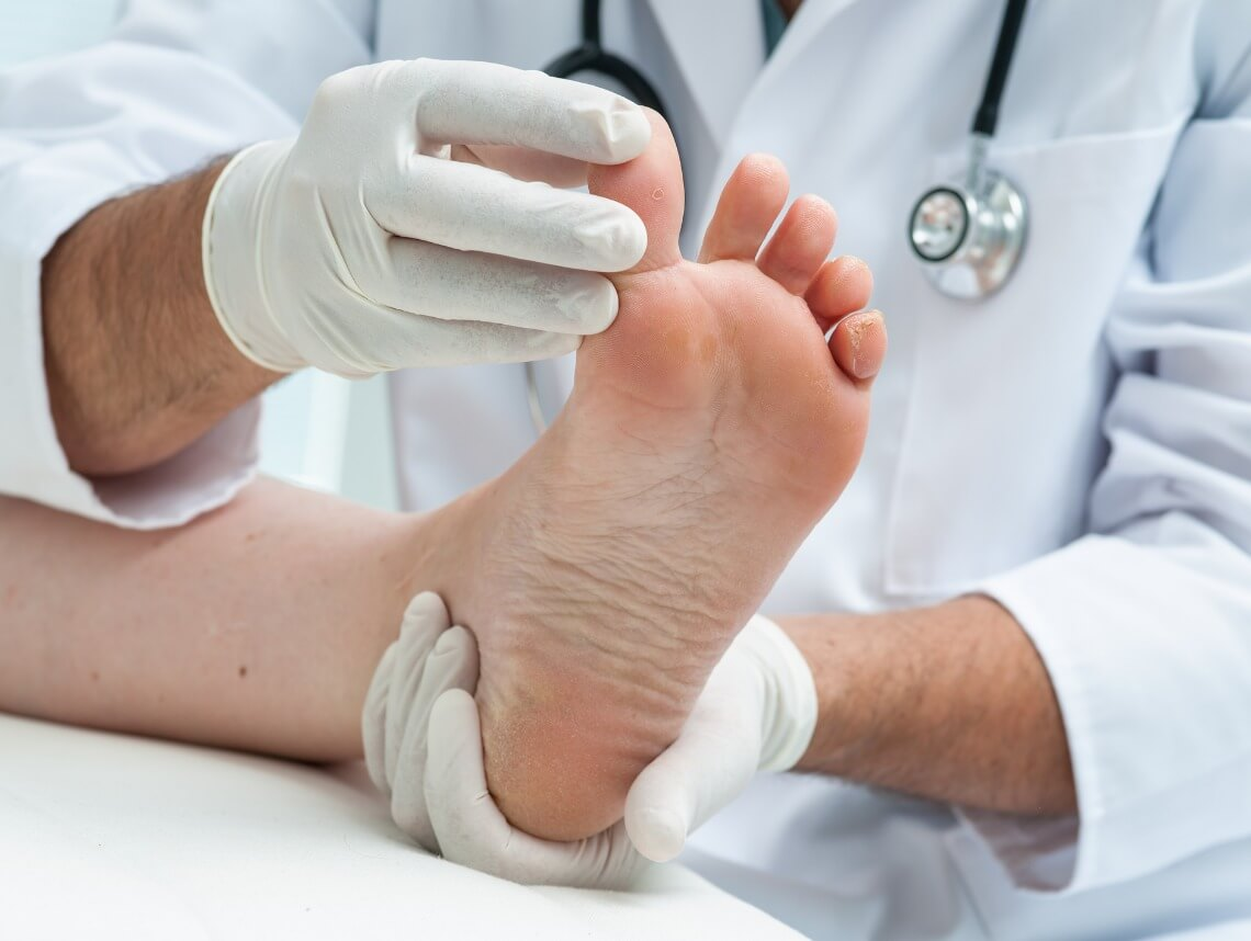 What Is Diabetic Neuropathy