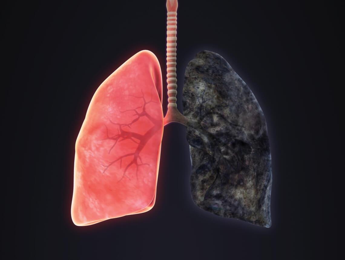 Emphysema Symptoms Treatment Amp More Sonas Home Health Care