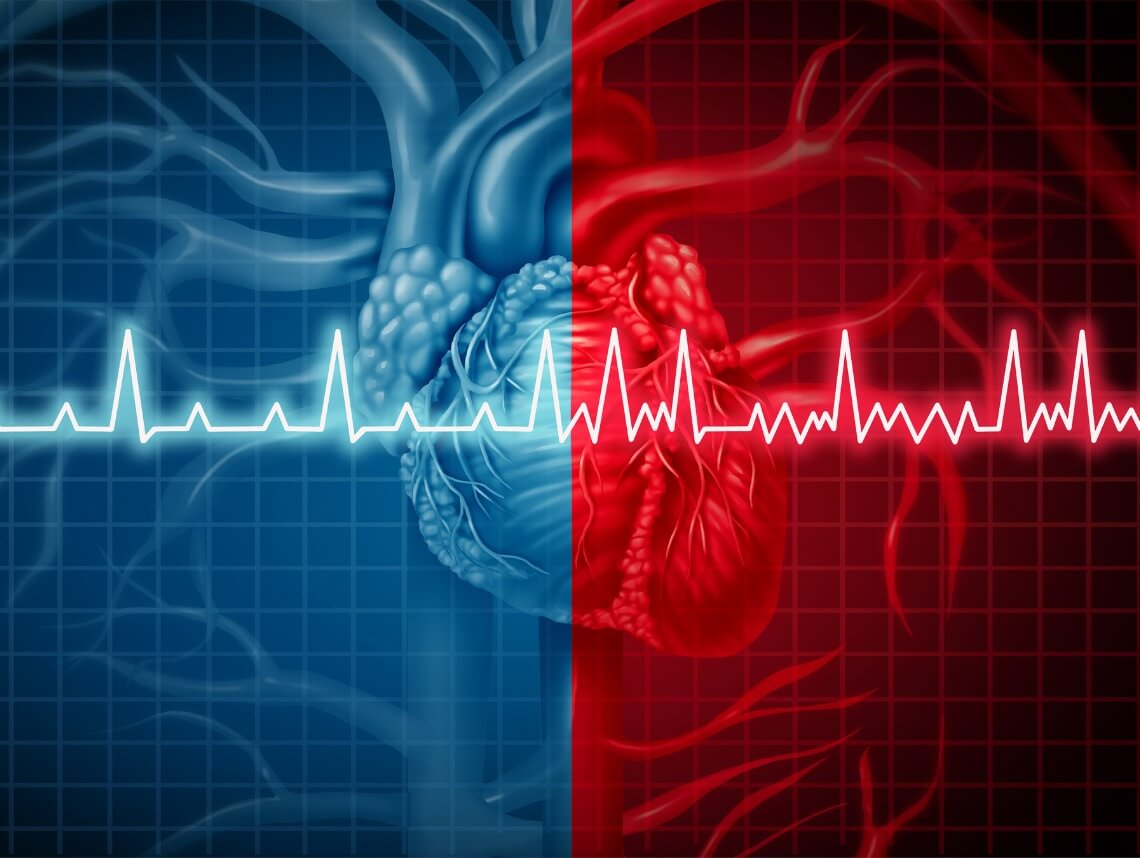 Tests Used to Diagnose Atrial Fibrillation