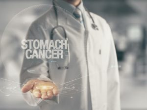 Stomach Cancer in Older Adults