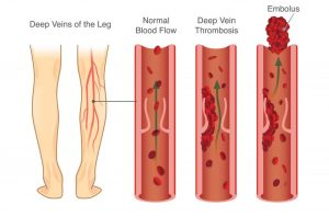 What Is Deep Vein Thrombosis