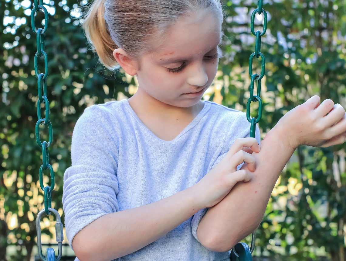 Guttate Psoriasis in Children
