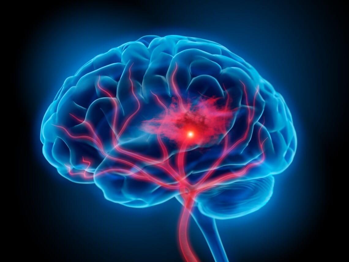 Encephalopathy in Children
